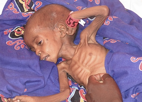 starving-child-darfur