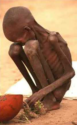 starving_child-sudan2