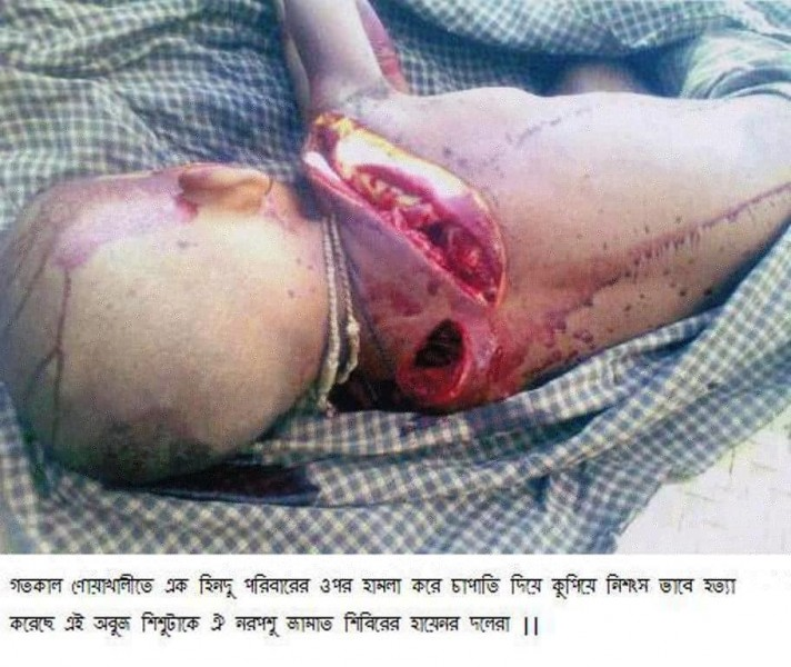 Supporters of Sayeede, Jammati Islamic beasts chopped to kill this innocent Hindu Child in Noakhali (Bangladesh)