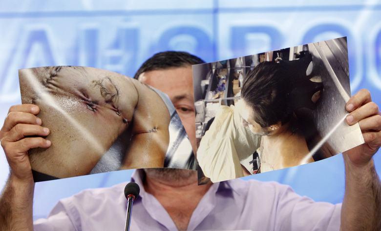 Abdulbaki Todashev, the father of Ibragim Todashev, shows photographs of his son's body