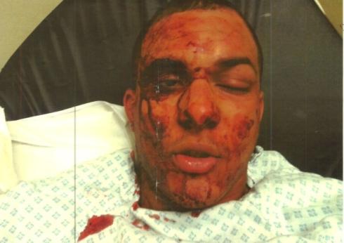 The attack left Francesco Hounye with horrific injuries