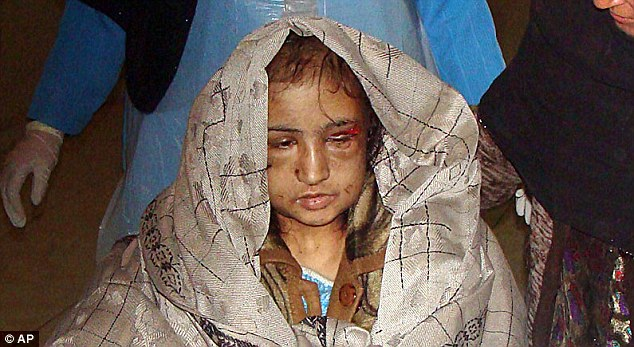 NOW child bride abused by her husband