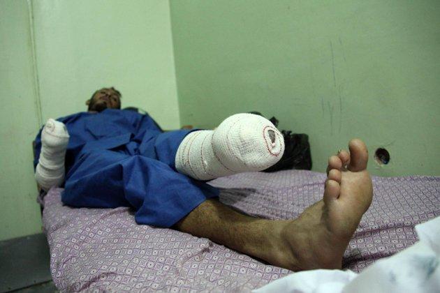 said_taliban_amputee_victim