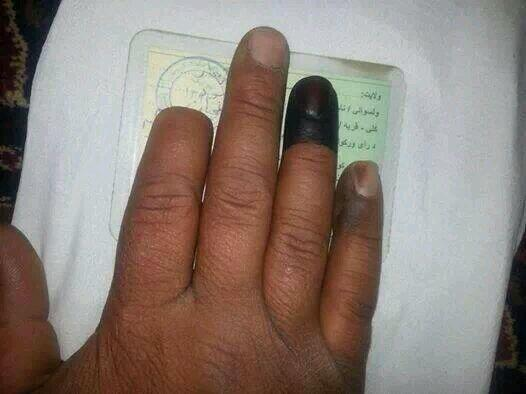 Afghan man who had his finger cut off during the last election, returned to vote again this time