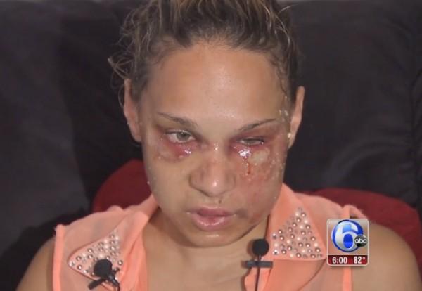 Beating victim Catherine Ferreira