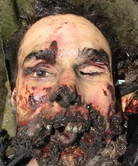 The only happy photo here - dead Chechen Muslim terrorist