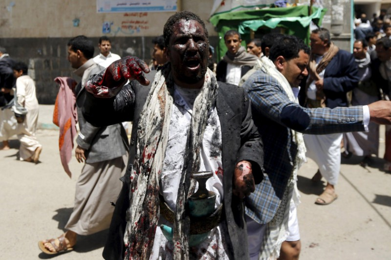 An injured man appeals for help as he waits for an ambulance outside a mosque which was attacked by a suicide bomber in Sanaa