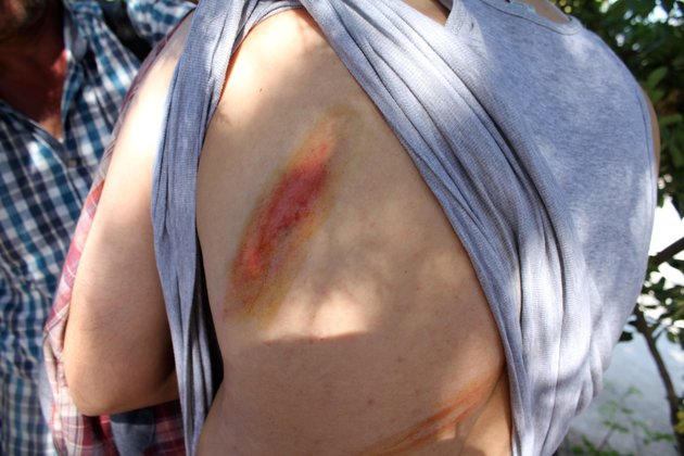 Muslim shows whip marks on his back from what he said was an attack by masked gunmen in international waters between Turkey and the Greek island of Lesbos.