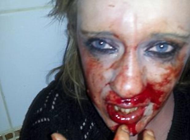 Finnish rape victim of Muslim migrant