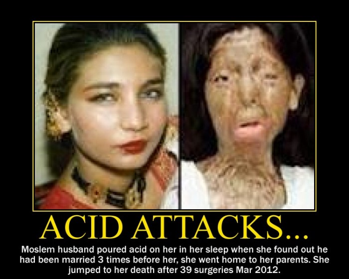 acid-attack-victim-before-after-e1359759915416